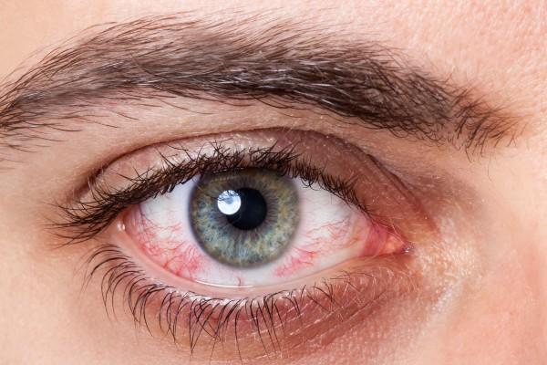 olho seco e irritado