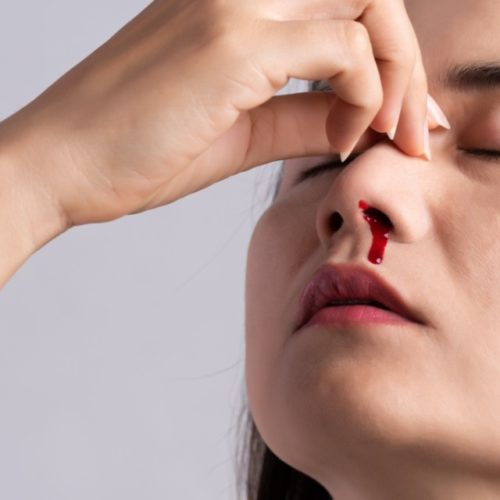 Sangramento pelo nariz