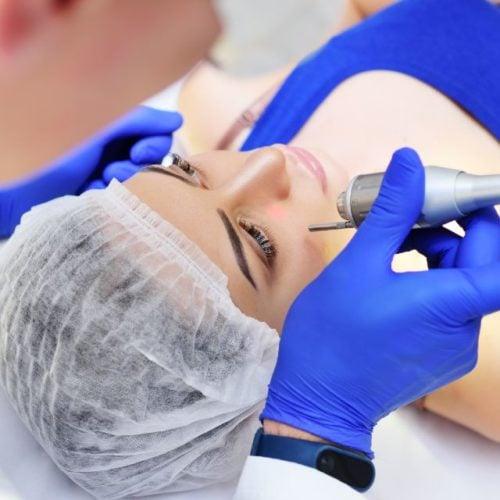 Tratamento para verruga