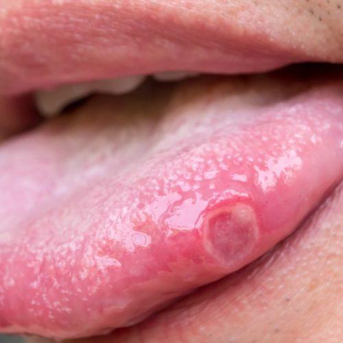 úlcera-na-boca