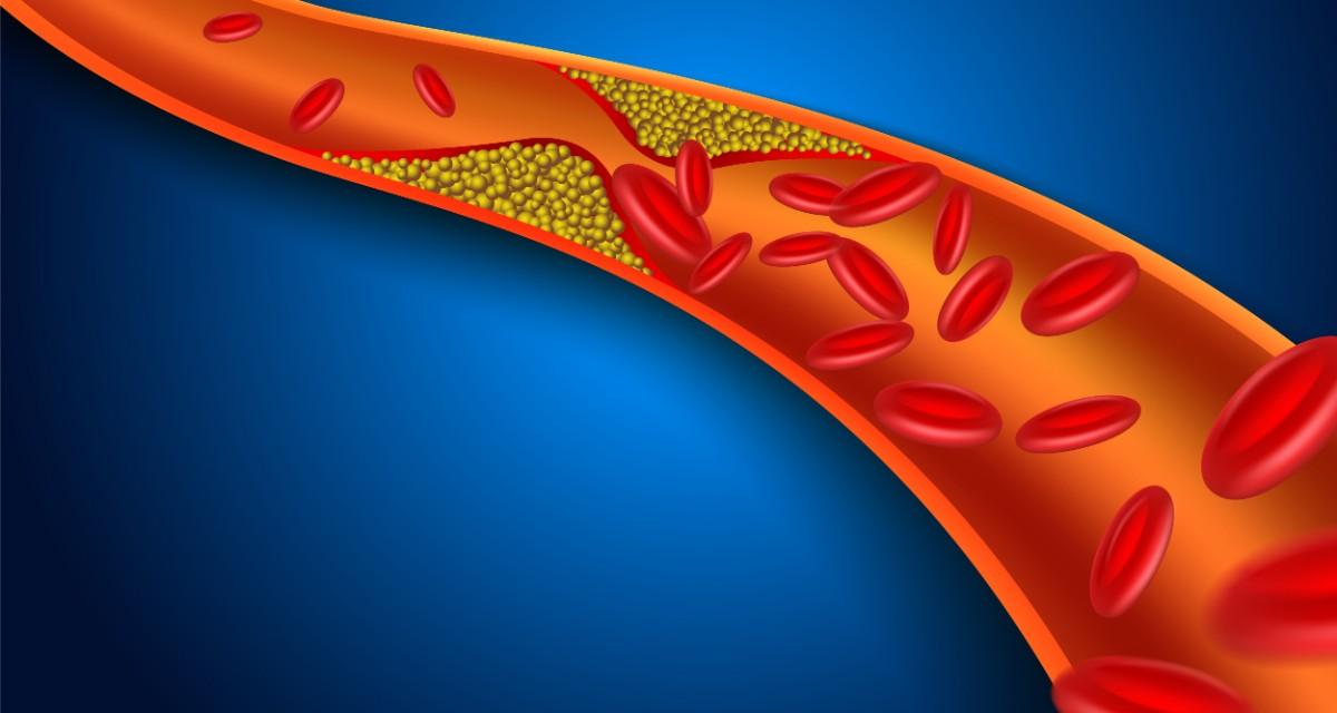 Colesterol | zemcenter.ro - Colesterol vizual