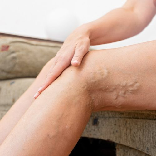 Trombose na perna