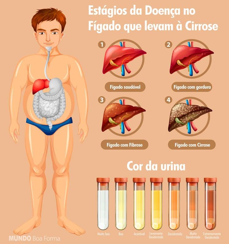 estágios da gordura no fígado que levam á cirrose
