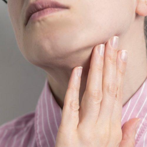 sintomas da mononucleose