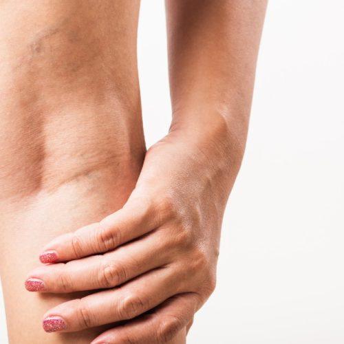 trombose nas pernas