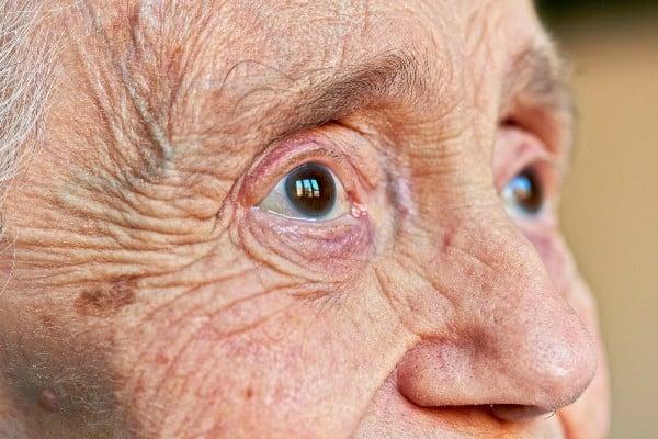 Olhos de idosa