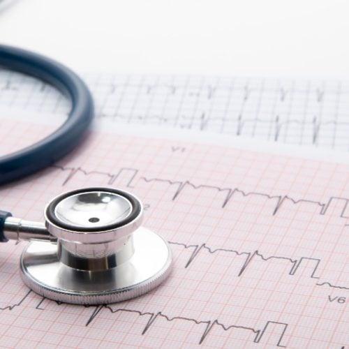exame de cintilografia miocárdica