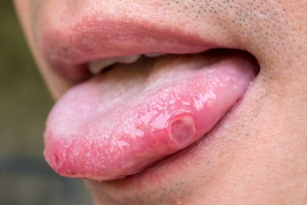 língua manchada