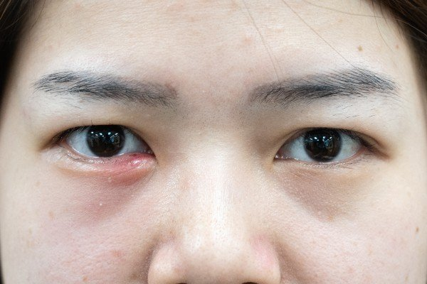olho com terçol