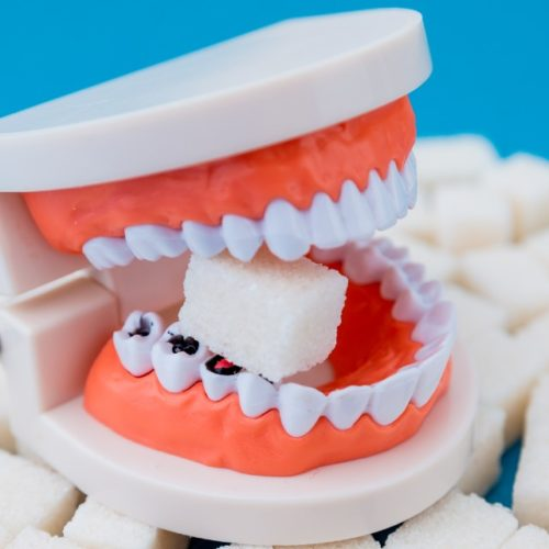 alimentos ruins para os dentes