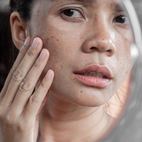 mulher observando manchas na pele