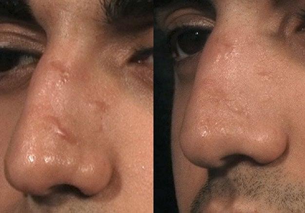 tratamento com laser para queloide no nariz