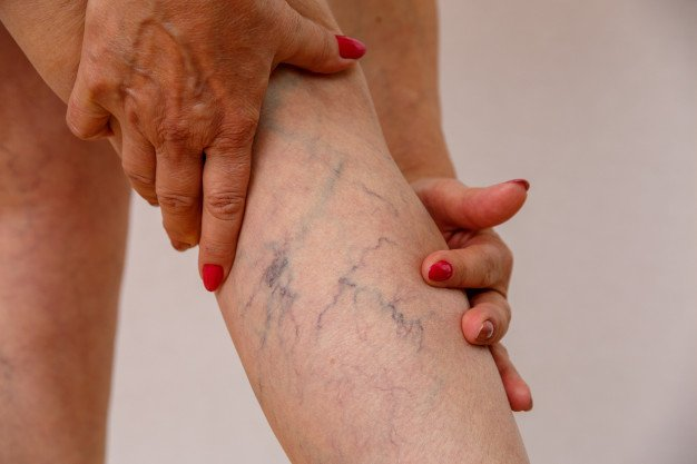perna com varizes