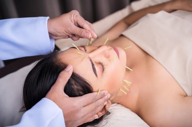 Sessão de acupuntura