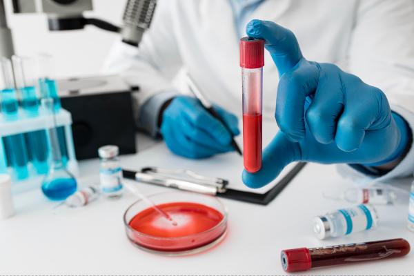 amostra de sangue