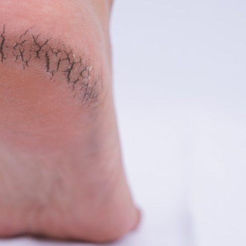 bicheira no pé