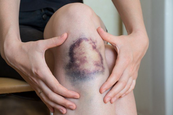 hematoma na pele