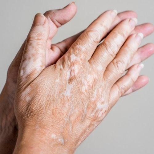 manchas brancas nas mãos