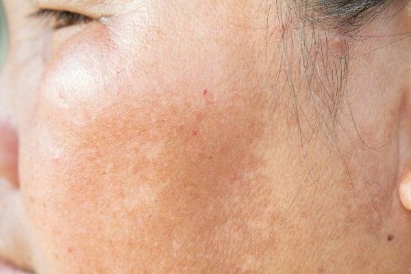 pele com mancha branca