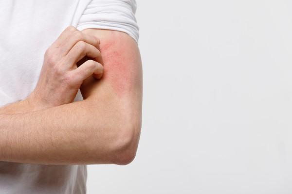sintoma de alergia
