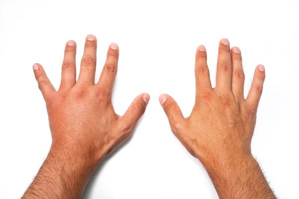 mão inchada