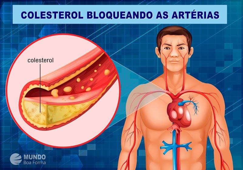 diagrama colesterol bloqueando artérias