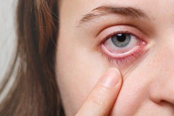 problema nos olhos