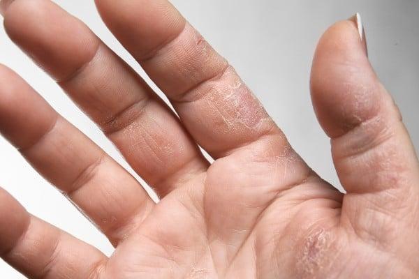 disidrose na mão