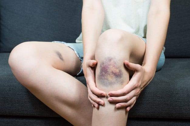 hematoma na perna