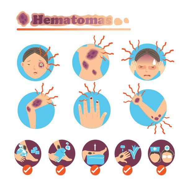 ilustração hematomas