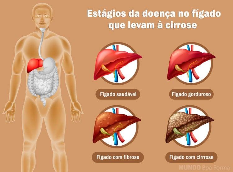 ilustração do fígado saudável até o fígado com cirrose