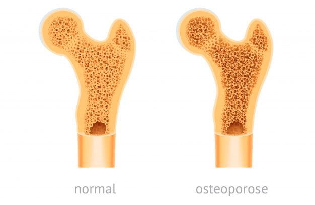 Osso normal vs osteoporose
