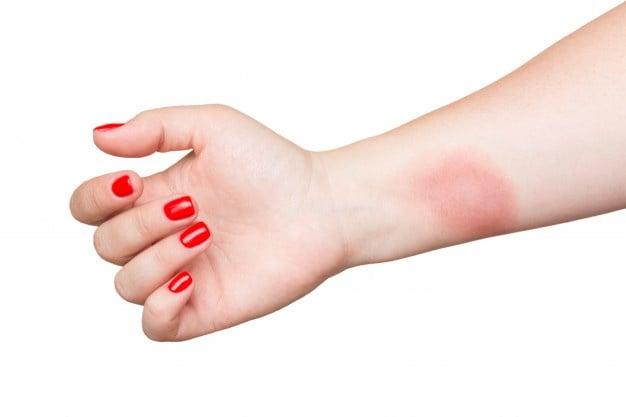 queimadura na pele