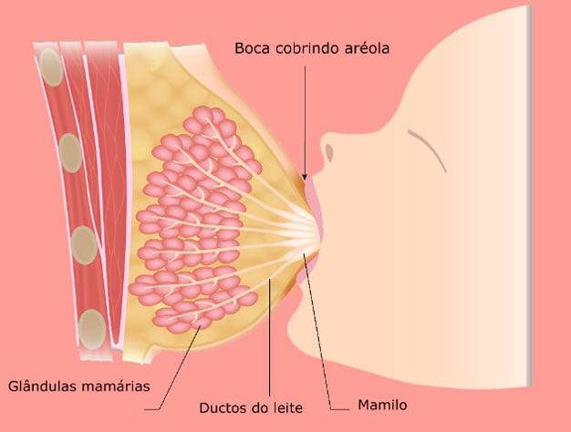 ectasia do ducto mamário