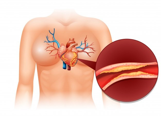 arteria bloqueada aterosclerose