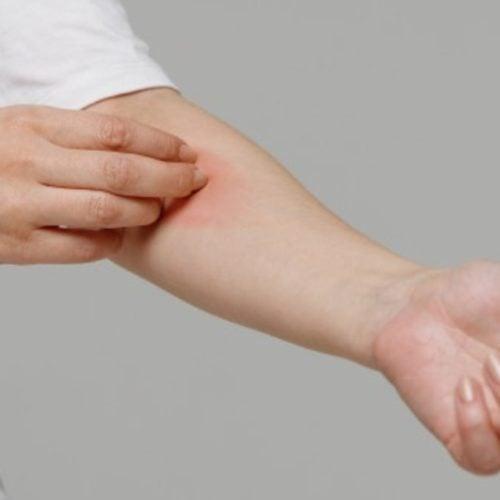 mancha vermelha no braço