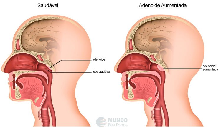 adenoide aumentada vs adenoide normal
