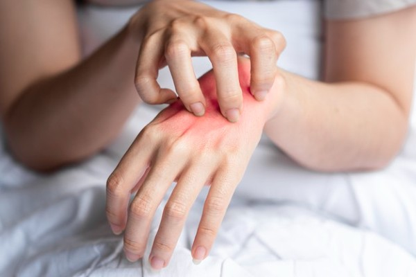 alergia na mão