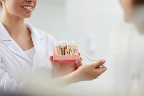 como substituir dente perdido