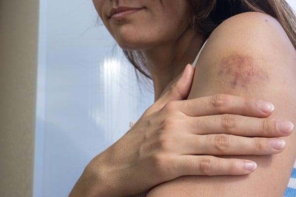 machucado na pele
