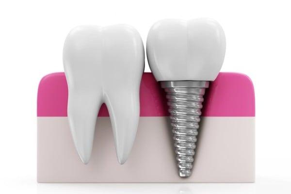dente artificial