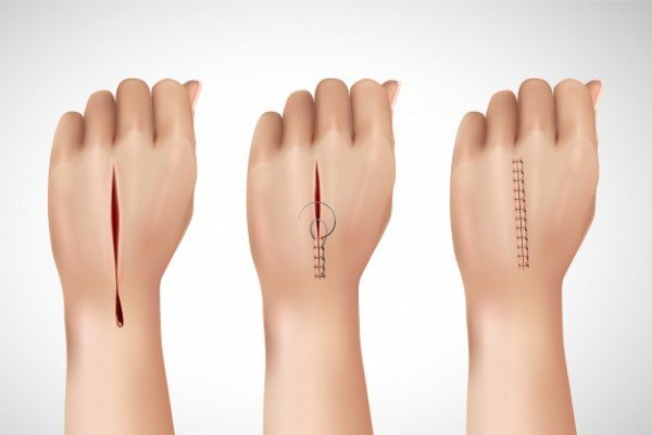 sutura na pele