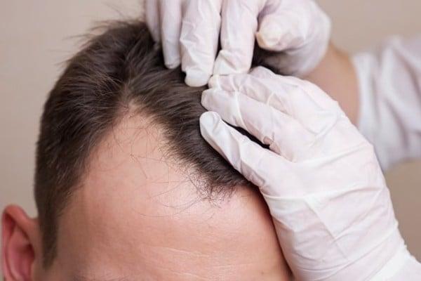 médico avaliando o couro cabeludo