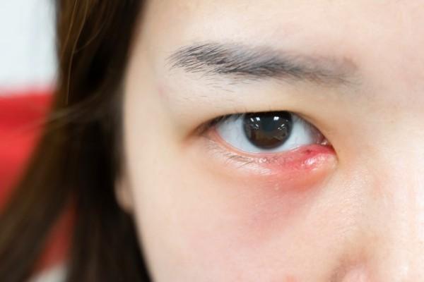 olho irritado e vermelho
