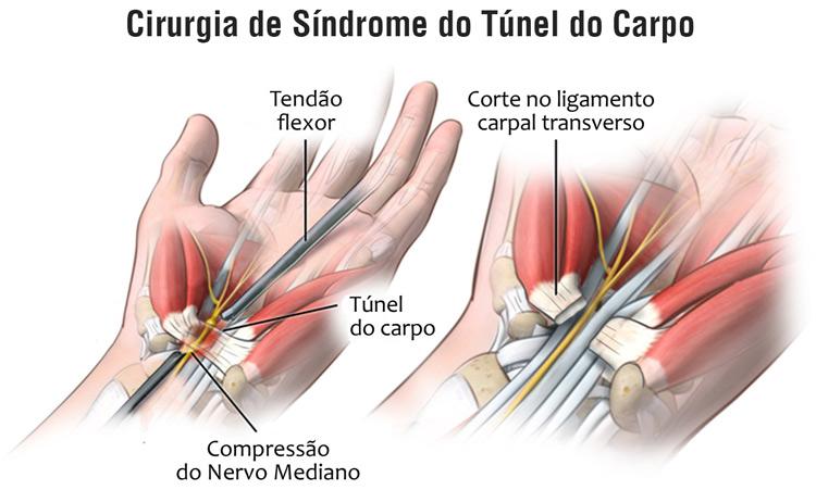 cirurgia de síndrome do túnel do carpo