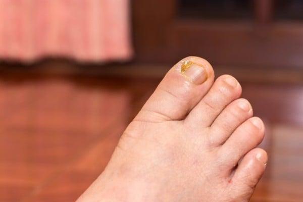 micose na unha do pé