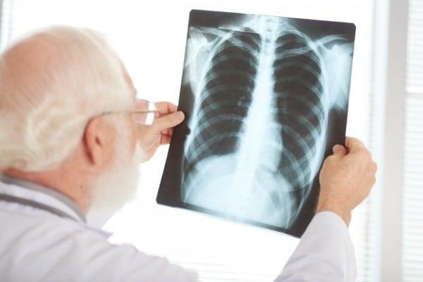raio x dos pulmões